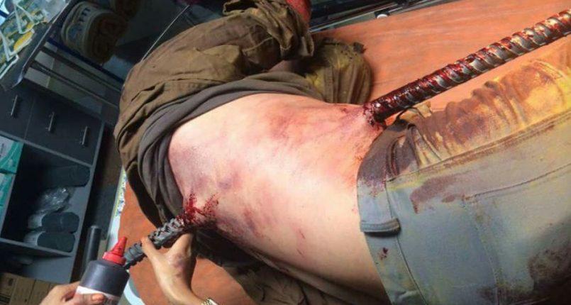 Dummies FX, Fabricacion de Sangre Artificial